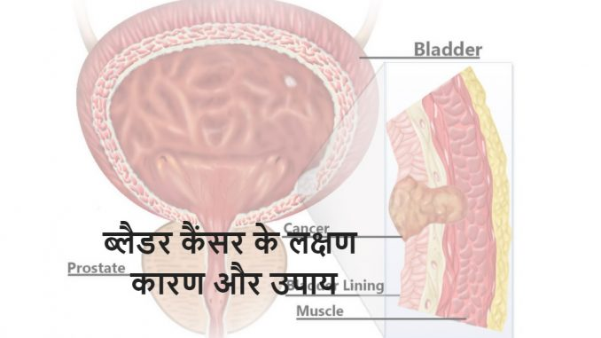 Bladder cancer in hindi
