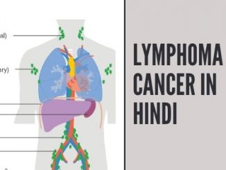 lymphoma cancer in hindi | lymphoma in hindi | lymphoma treatment in hindi