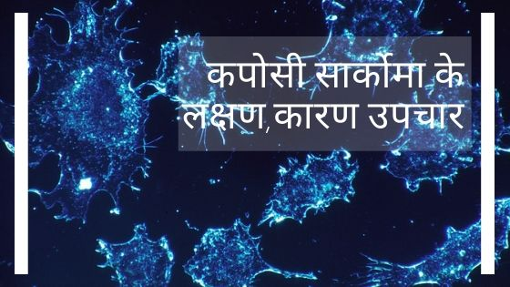 soft tissue cancer in hindi | soft tissue cancer symptoms in hindi